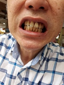 Oral Botanica Tooth Whitening review