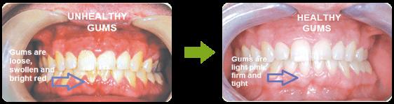 unhealthy vs healthy teeth gums